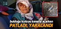 Evin Arkasında Bulduğu Kutu Elinde Patlayan Kadın Yaralandı